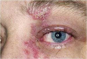 Shingles on the eye